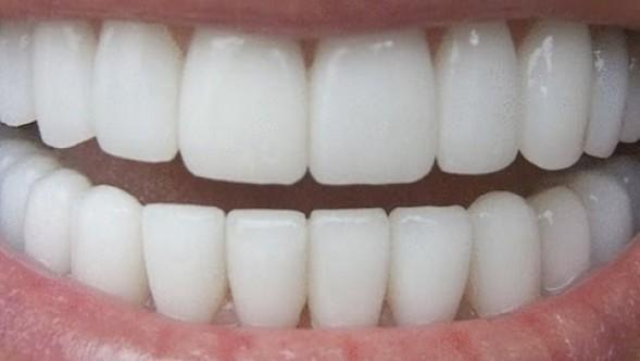 Cum iti albesti dintii?