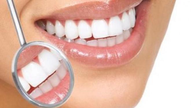Eficacitatea tratamentelor de albire dentara