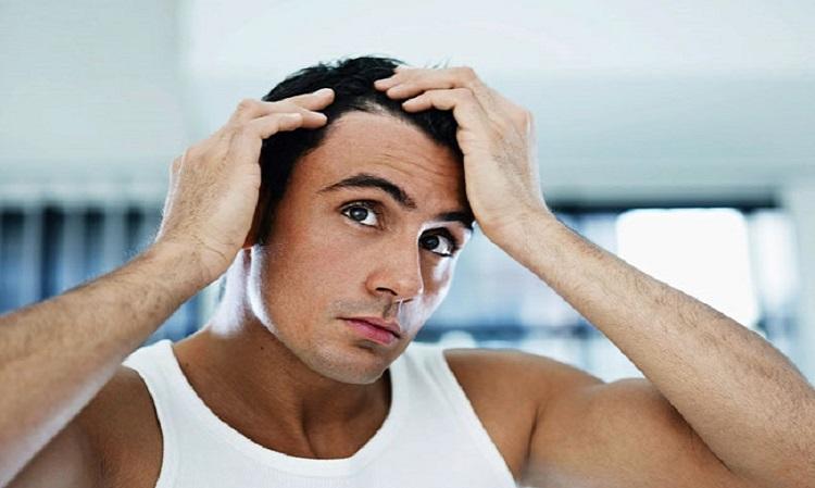 Parusan – pentru barbatii care se confrunta cu pierdera parului