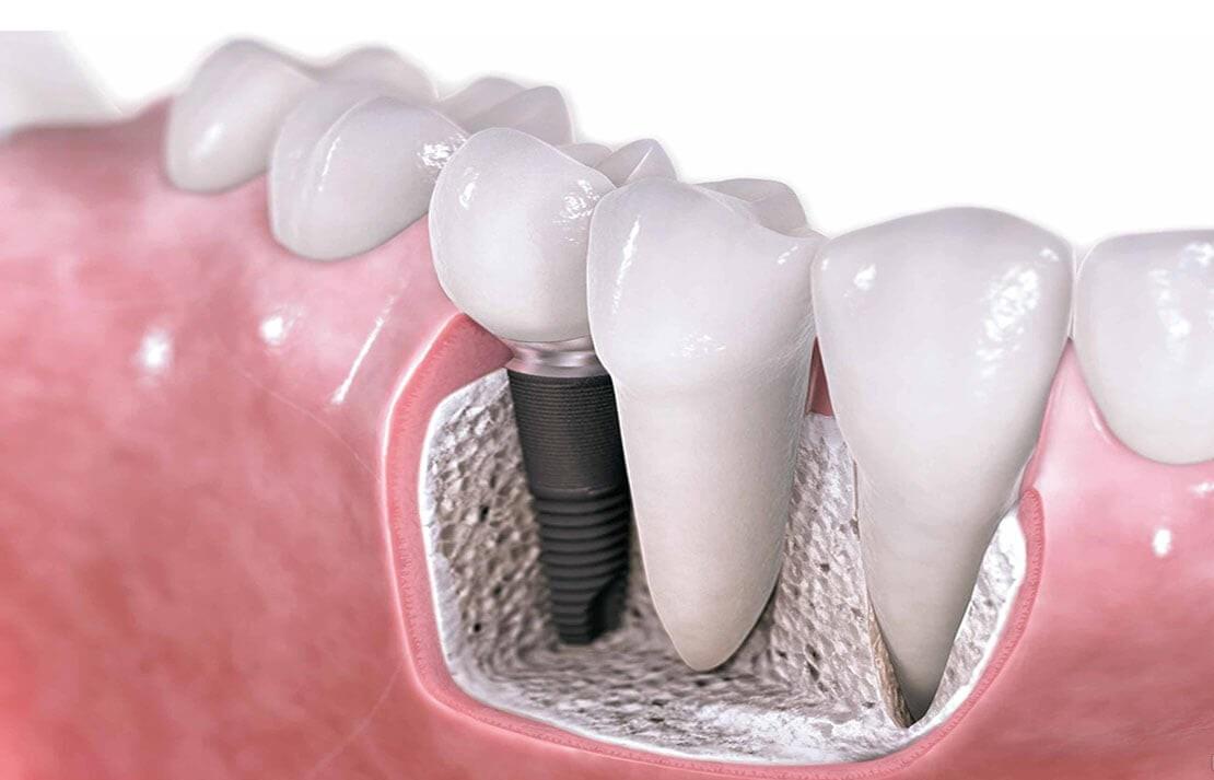 Intrebari frecvente despre implanturile dentare